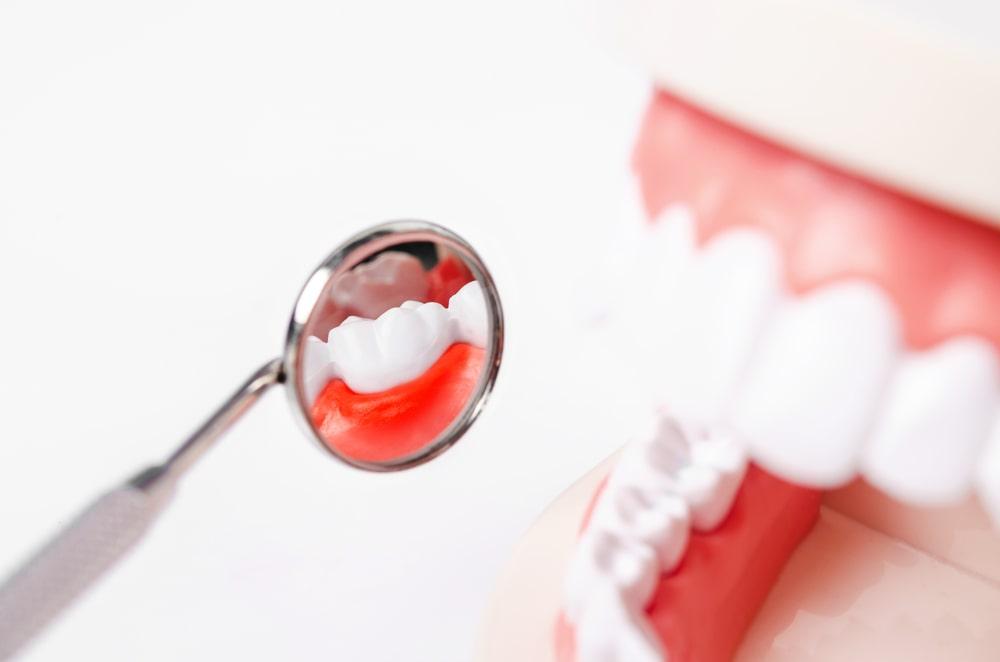 Un modèle dentaire de gingivite